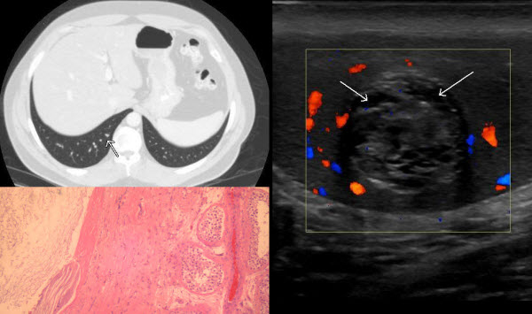 Archives Of The Journal Of Radiology Case Reports In Case In Point Archives Radiology
