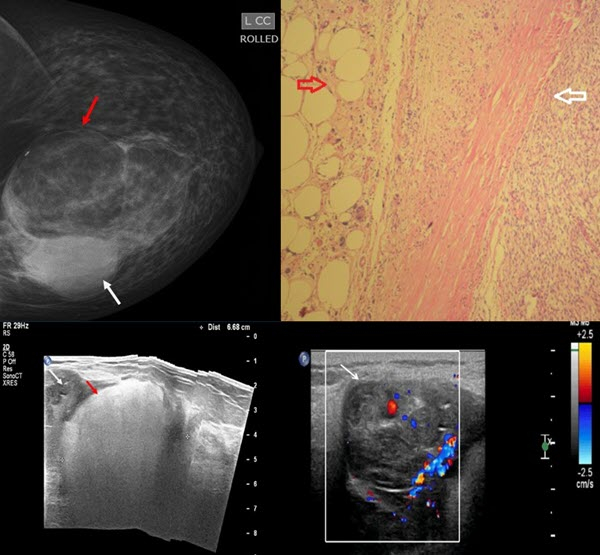 Archives Of The Journal Of Radiology Case Reports Inside Case In Point Archives Radiology